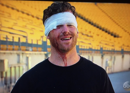 James Taylor Stitches The Bachelorette